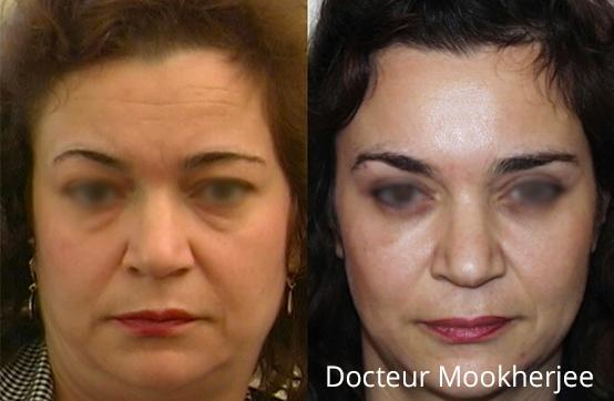 Botox et blépharoplastie