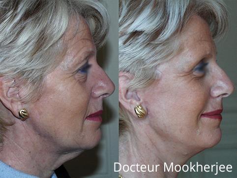 Lifting cervico-facial et paupières