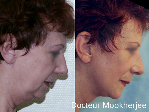 Lifting cervico-facial sur cou empâté