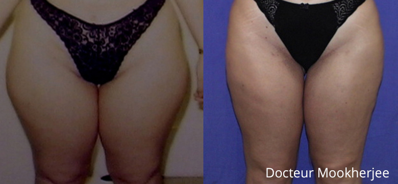 Liposuccion cuisses