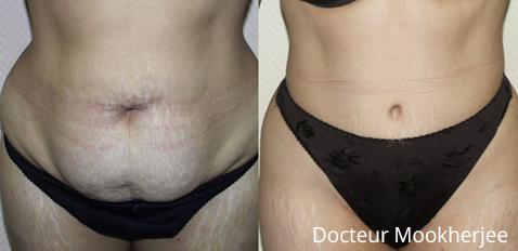 Plastie abdominale et chirurgie des muscles