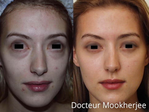 bl pharoplastie paris la chirurgie des paupi res par dr mookherjee m decine et chirurgie. Black Bedroom Furniture Sets. Home Design Ideas