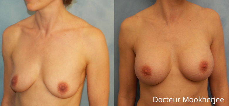 Seins ptosés - lifting des seins et prothèses