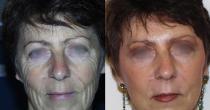 Laser, greffe de graisse et lifting cervico facial